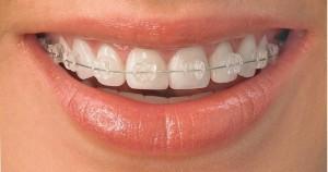 Mutuelle appareil dentaire